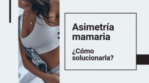 Asimetría mamaria: ¿cómo solucionarla?