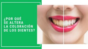 ¿Por qué se altera la coloración de los dientes?