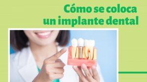 Cómo se coloca un implante dental