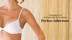 Anomalías en el desarrollo de la mama: pechos tuberosos
