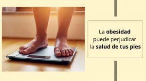 La obesidad puede perjudicar la salud de tus pies