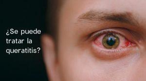 ¿Se puede tratar la queratitis?