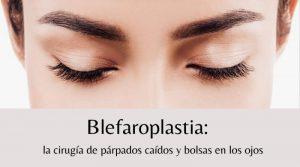 Blefaroplastia: la cirugía de párpados caídos y bolsas en los ojos