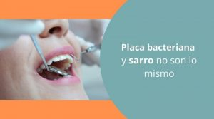 Placa bacteriana y sarro no son lo mismo