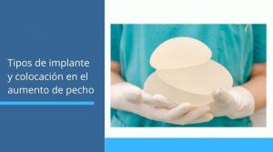 Tipos de implante y colocación en el aumento de pecho