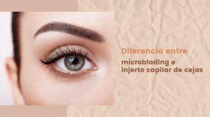 Diferencia entre microblading e injerto capilar de cejas