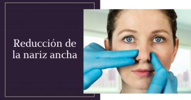 Reducción de la nariz ancha