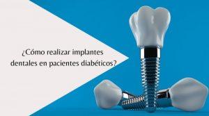 ¿Cómo realizar implantes dentales en pacientes diabéticos?