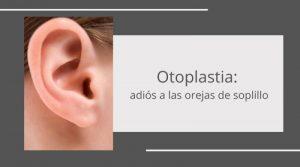 Otoplastia: adiós a las orejas de soplillo
