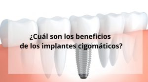 ¿Cuál son los beneficios de los implantes cigomáticos?