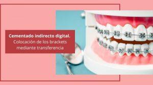 Cementado indirecto digital. Colocación de los brackets mediante transferencia