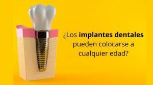 ¿Los implantes dentales pueden colocarse a cualquier edad?