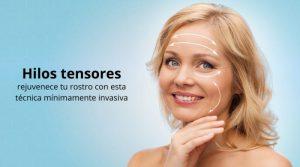 Hilos tensores: rejuvenece tu rostro con esta técnica mínimamente invasiva