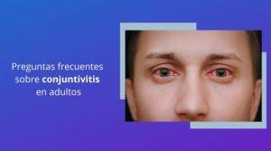 Preguntas frecuentes sobre conjuntivitis en adultos
