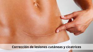Corrección de lesiones cutáneas y cicatrices