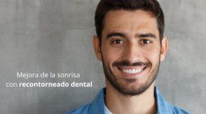 Mejora de la sonrisa con recontorneado dental