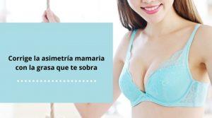 Corrige la asimetría mamaria con la grasa que te sobra