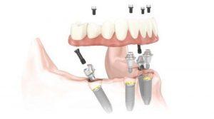 Lo más nuevo en salud dental: conozca los implantes All on 4