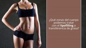 ¿Qué zonas del cuerpo podemos tratar con el lipofilling o transferencia de grasa?