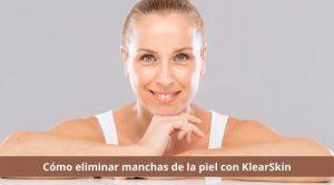 Cómo eliminar manchas de la piel con KlearSkin