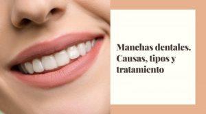 Manchas dentales. Causas, tipos y tratamiento