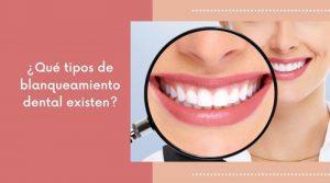 ¿Qué tipos de blanqueamiento dental existen?