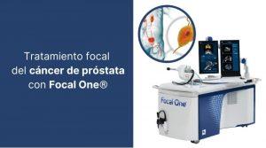 Tratamiento focal del cáncer de próstata con Focal One®