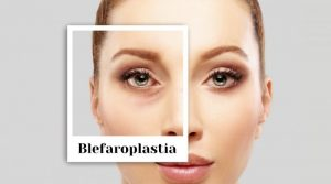 Blefaroplastia: alegra y rejuvenece tu mirada