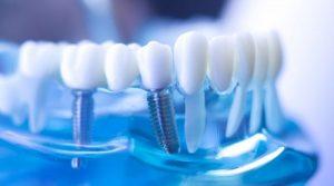 9 preguntas frecuentes sobre implantes dentales