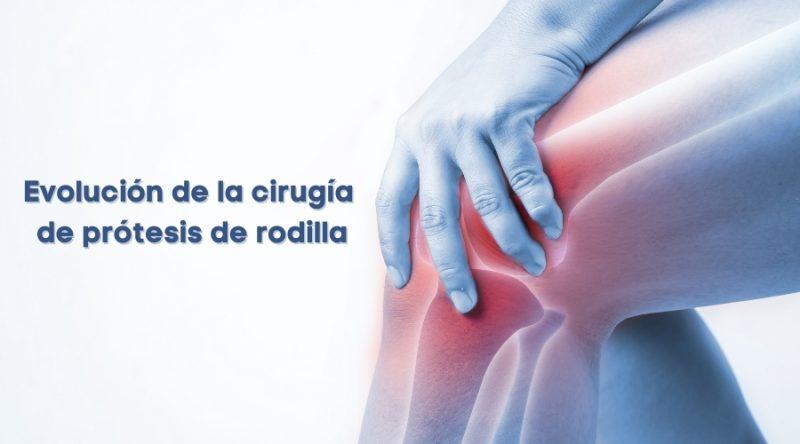 Evolución de la cirugía de prótesis de rodilla