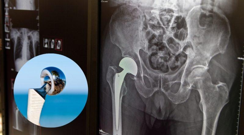 Mejoras en la cirugía de prótesis total de cadera