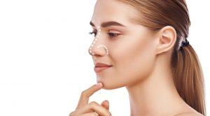 ¿Qué puedo conseguir con una cirugía de nariz?
