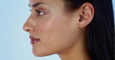 ¿Cómo corregir las orejas en forma de soplillo?