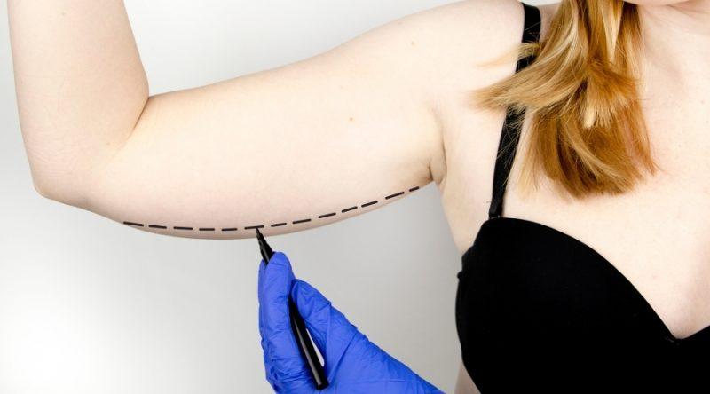 Braquioplastia-Lifting de Brazos. Elimina la piel descolgada y exceso de grasa de tus brazos