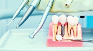 ¿Sabes qué es el pasaporte de implantes dentales?