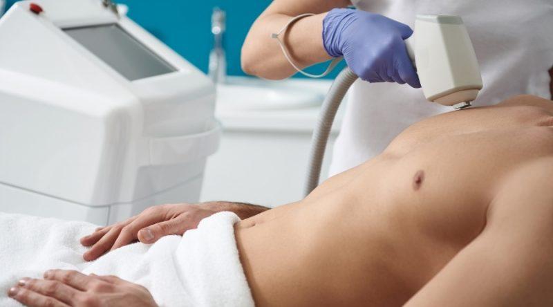 Eficacia de la depilación láser diodo en hombres