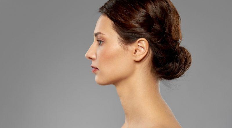 ¿Qué es y en qué consiste una cirugía secundaria de la nariz?